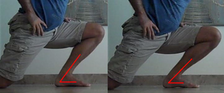 Pure Ankle Dorsiflexion vs. Ankle Dorsiflexion Plus Foot Pronation