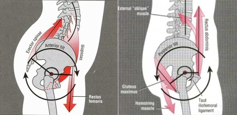 Left: Anterior Pelvic Tilt (APT) - this is undesirable in a push-up. Right: Posterior Pelvic Tilt (PPT) - this is the position you want in a push up (neutral is fine too)